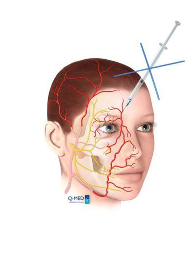 arterial-images03-jpg
